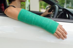 woman with broken arm driving